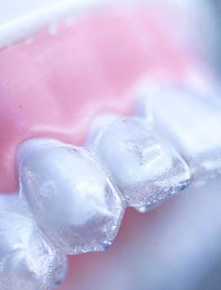 clear aligner over teeth